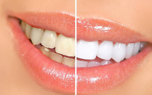 Teeth whitening comparison closeup